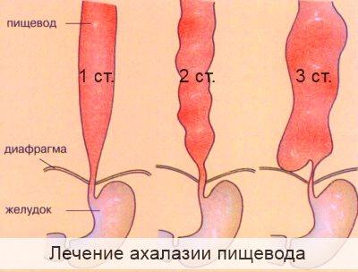 лечение ахалазии пищевода