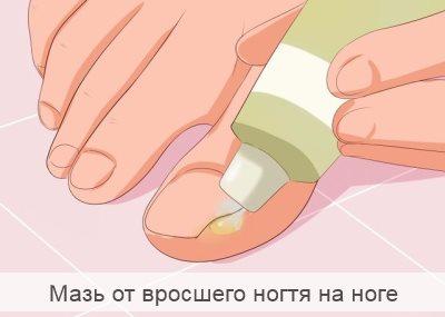 мазь от вросшего ногтя на ноге