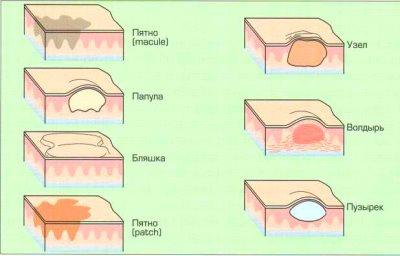 медицинский осмотр кожи