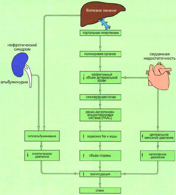 патогенез отеков