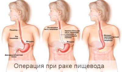 после операции рака пищевода
