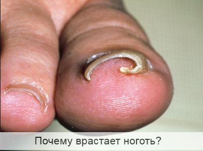 почему врастает ноготь на большом пальце ноги