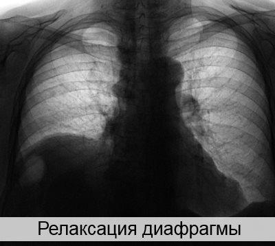 релаксация диафрагмы