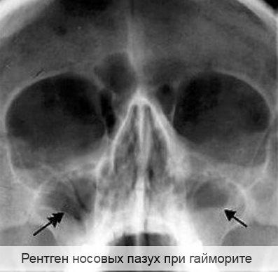 рентген ноcовых пазух при гайморите