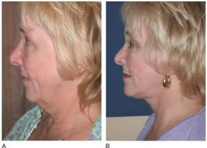 косметические операции на лице