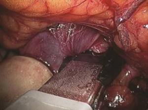 почечно-клеточный рак