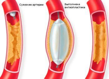 Ангиопластика сосудов нижних конечностей - Сосудистая хирургия