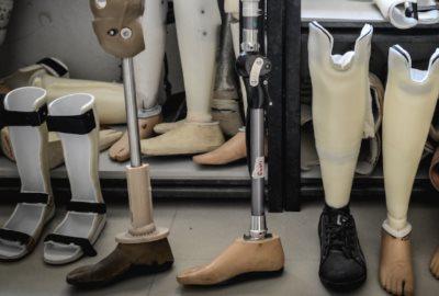 протезы ноги