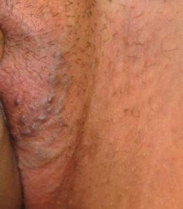 Варикоз наружных половых органов