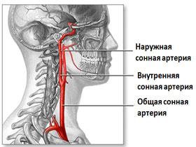 Повреждения сонной артерии