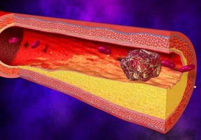 диагностика тромбоза
