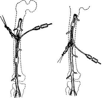 Операции при тромбе артерии