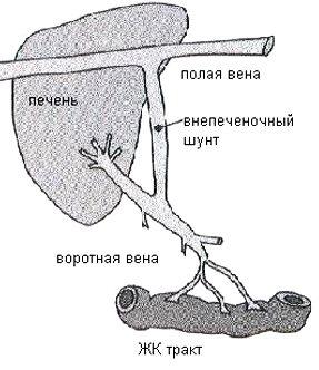 Портосистемный шунт
