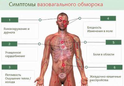 вазовагальный обморок
