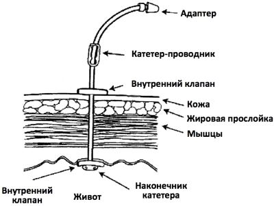 гастростома