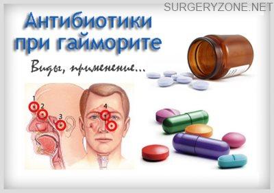 Какие антибиотики пить при гайморите