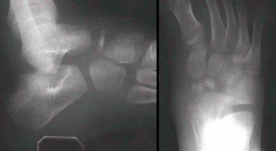 остеохондропатия костей стопы
