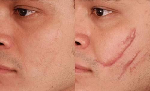 лазерная шлифовка шрама
